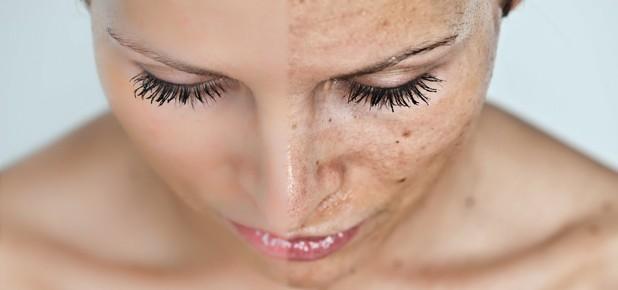 избавление от пигментных пятен на лице